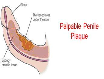 Palpable Penile Plaque