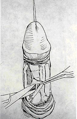 Dissection of neurovascular bundle